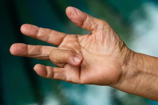 Le doigt à ressaut – IFCM